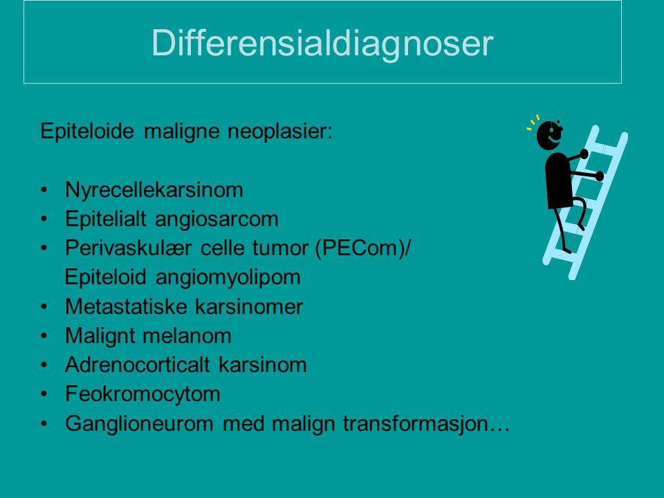 Differensialdiagnoser Epiteloide maligne neoplasier: Nyrecellekarsinom Epitelialt angiosarcom Perivaskulær celle tumor (PECom)/ Epiteloid angiomyolipo
