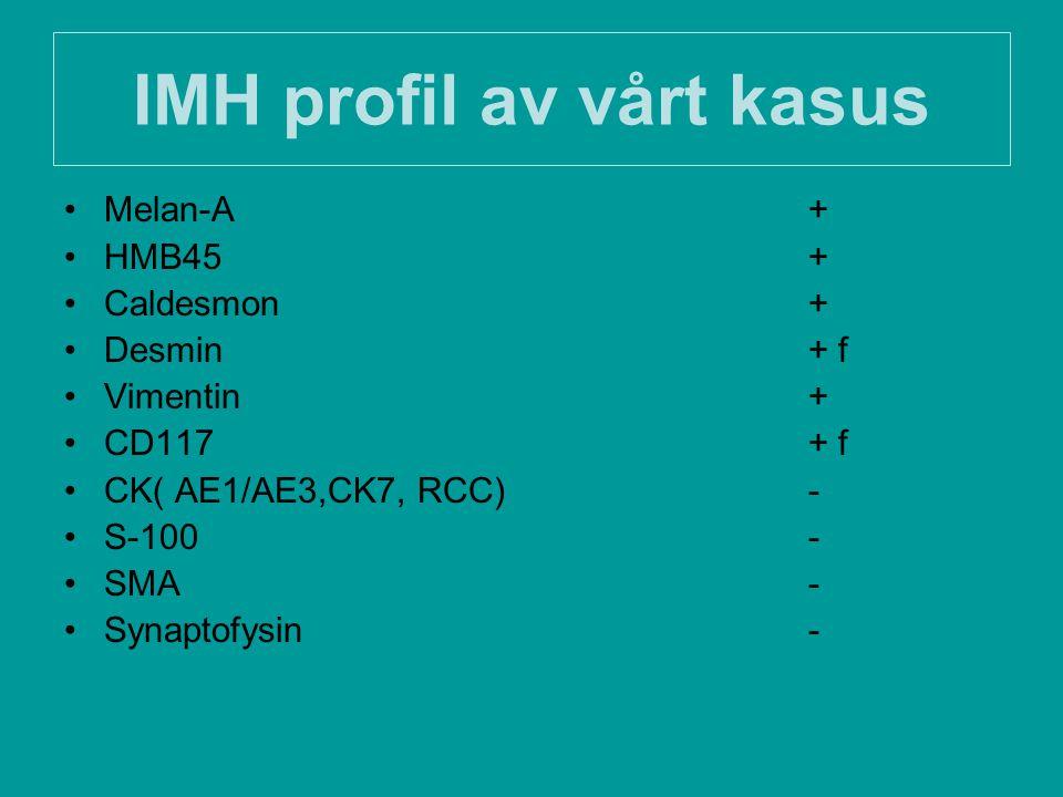 IMH profil av vårt kasus Melan-A+ HMB45+ Caldesmon+ Desmin+ f Vimentin+ CD117+ f CK( AE1/AE3,CK7, RCC)- S-100- SMA- Synaptofysin-
