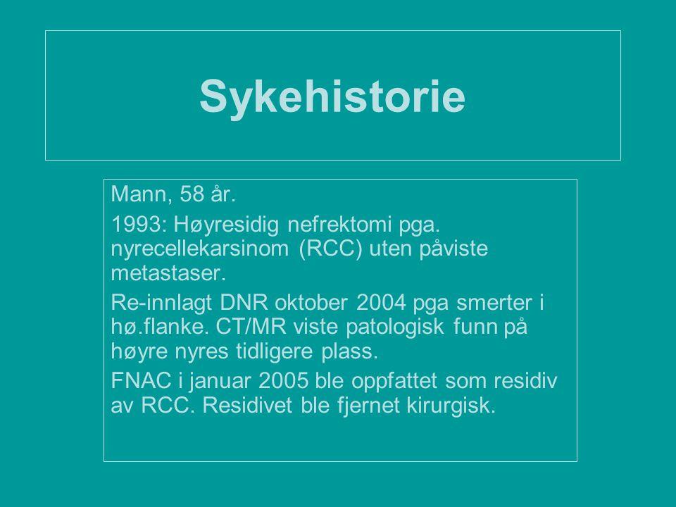Sykehistorie Mann, 58 år. 1993: Høyresidig nefrektomi pga. nyrecellekarsinom (RCC) uten påviste metastaser. Re-innlagt DNR oktober 2004 pga smerter i