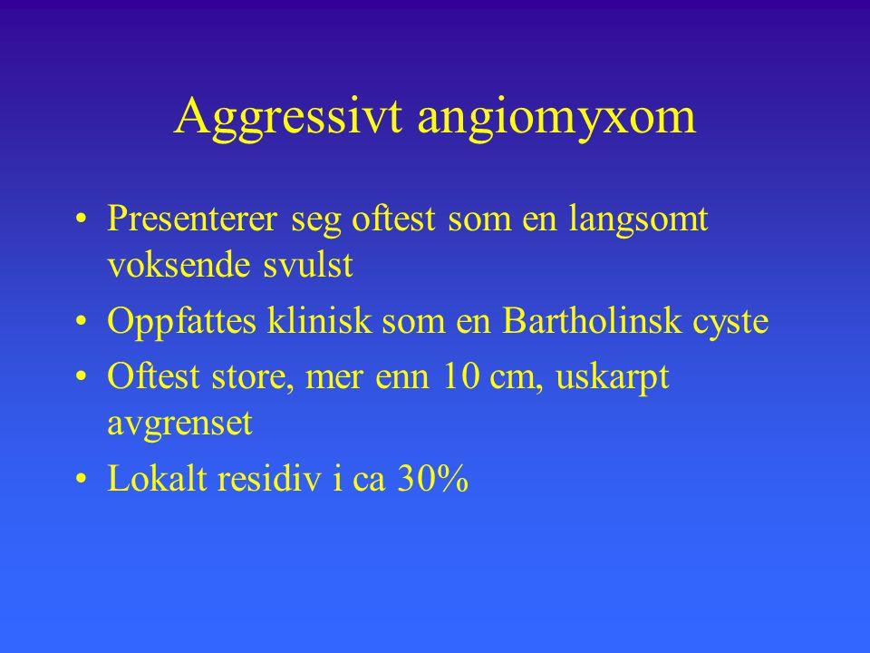 Aggressivt angiomyxom Presenterer seg oftest som en langsomt voksende svulst Oppfattes klinisk som en Bartholinsk cyste Oftest store, mer enn 10 cm, uskarpt avgrenset Lokalt residiv i ca 30%