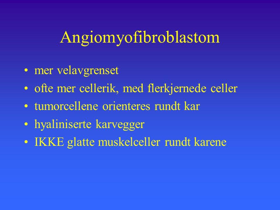 Angiomyofibroblastom mer velavgrenset ofte mer cellerik, med flerkjernede celler tumorcellene orienteres rundt kar hyaliniserte karvegger IKKE glatte muskelceller rundt karene
