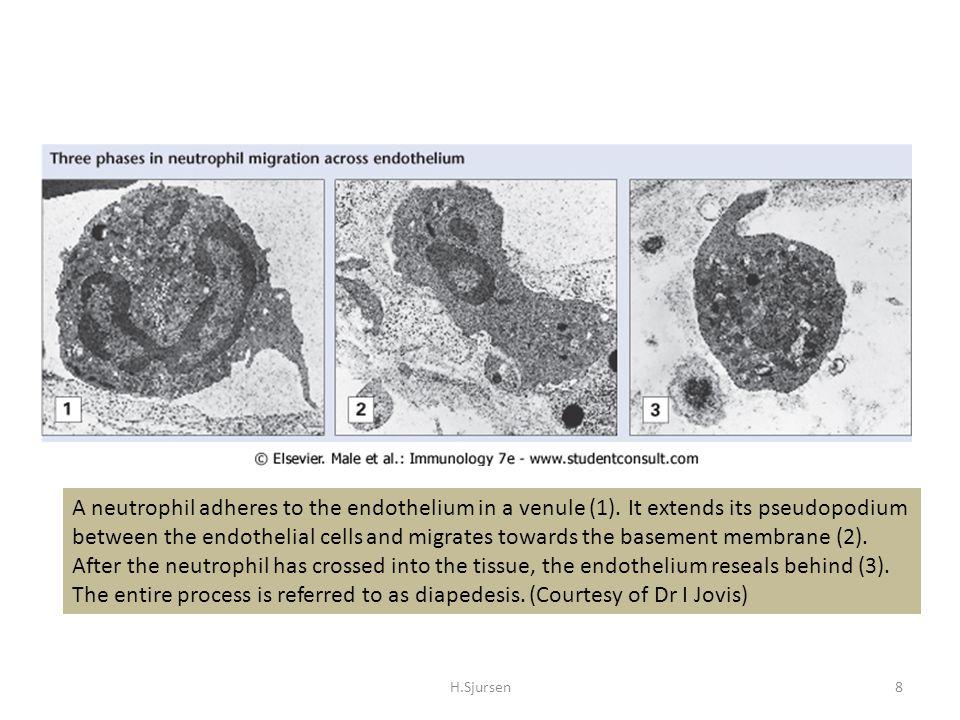 Kvalitative nøytrofile defekter H.Sjursen29 Adhesjonsdefekter – Leukocytt adhesions mangel (LAD) Type 1 Integrin mangel Type 2 E-selectin ligand mangel