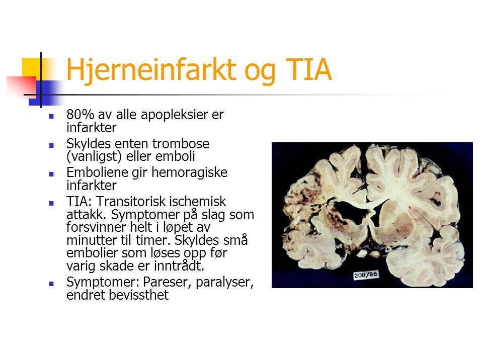 Hjerneinfarkt og TIA 80% av alle apopleksier er infarkter Skyldes enten trombose (vanligst) eller emboli Emboliene gir hemoragiske infarkter TIA: Tran