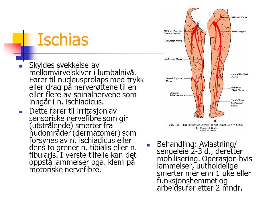 Ischias Skyldes svekkelse av mellomvirvelskiver i lumbalnivå. Fører til nucleusprolaps med trykk eller drag på nerverøttene til en eller flere av spin