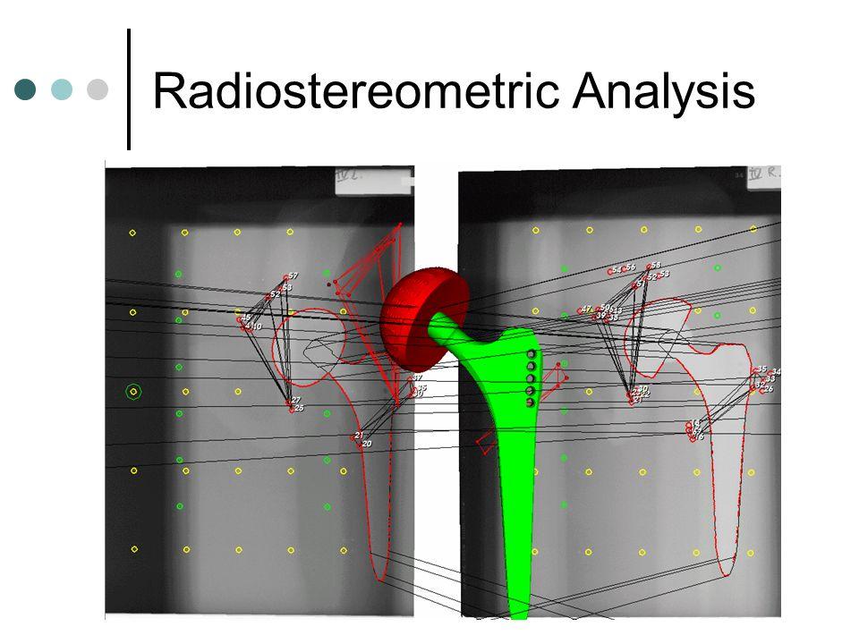 Radiostereometric Analysis