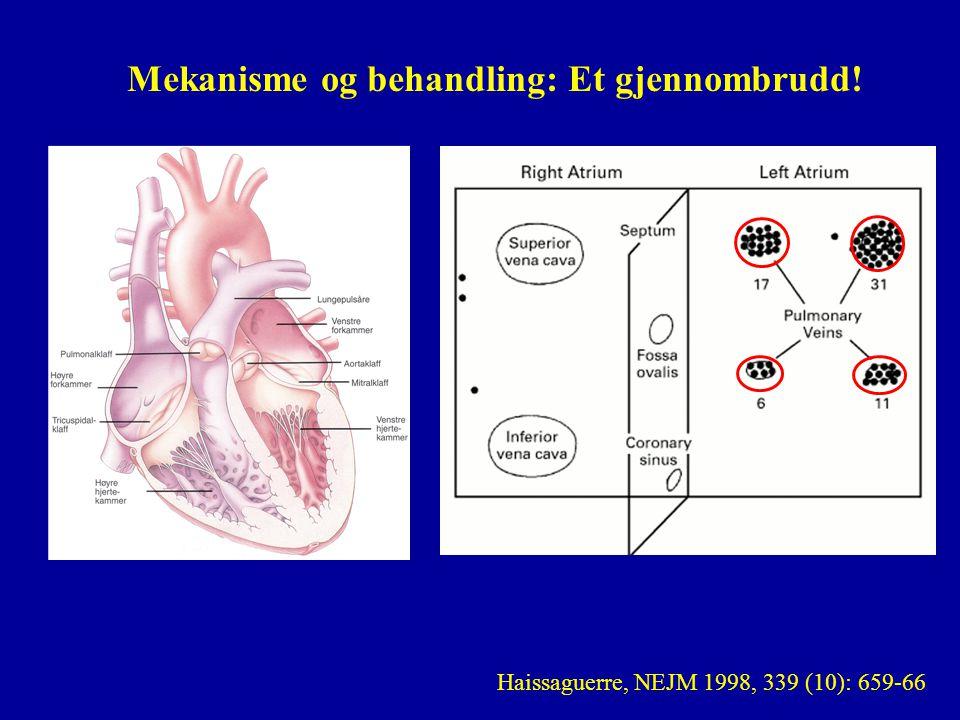 Haissaguerre, NEJM 1998, 339 (10): 659-66 Mekanisme og behandling: Et gjennombrudd!