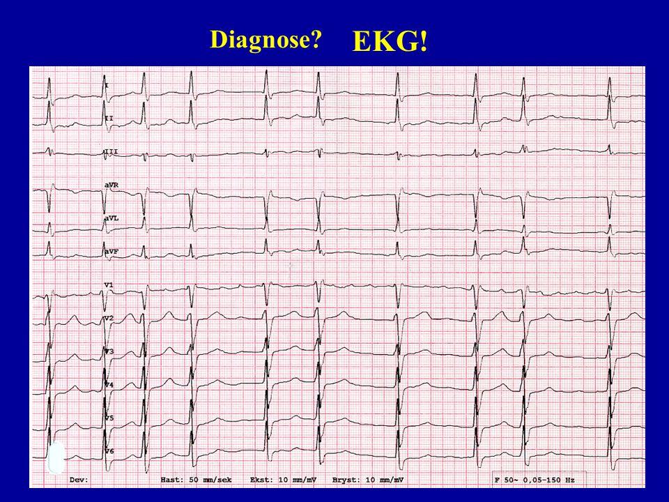 Diagnose? EKG!