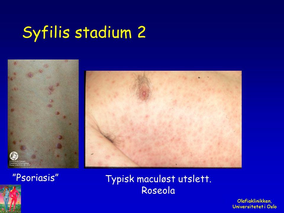 "Olafiaklinikken, Universitetet i Oslo Syfilis stadium 2 Typisk maculøst utslett. Roseola ""Psoriasis"""