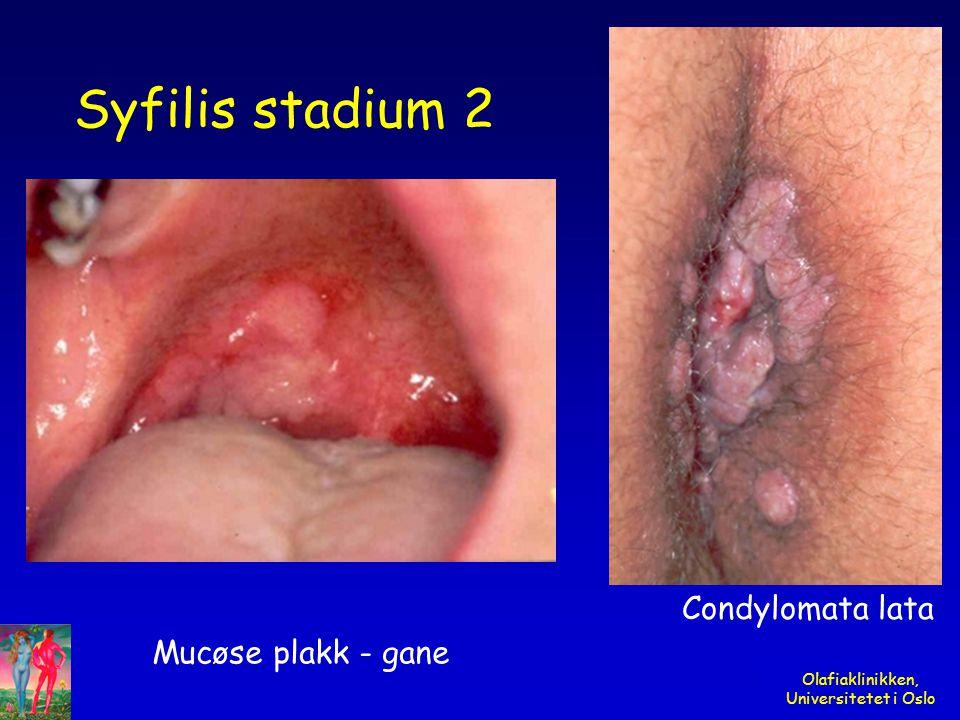 Olafiaklinikken, Universitetet i Oslo Syfilis stadium 2 Mucøse plakk - gane Condylomata lata