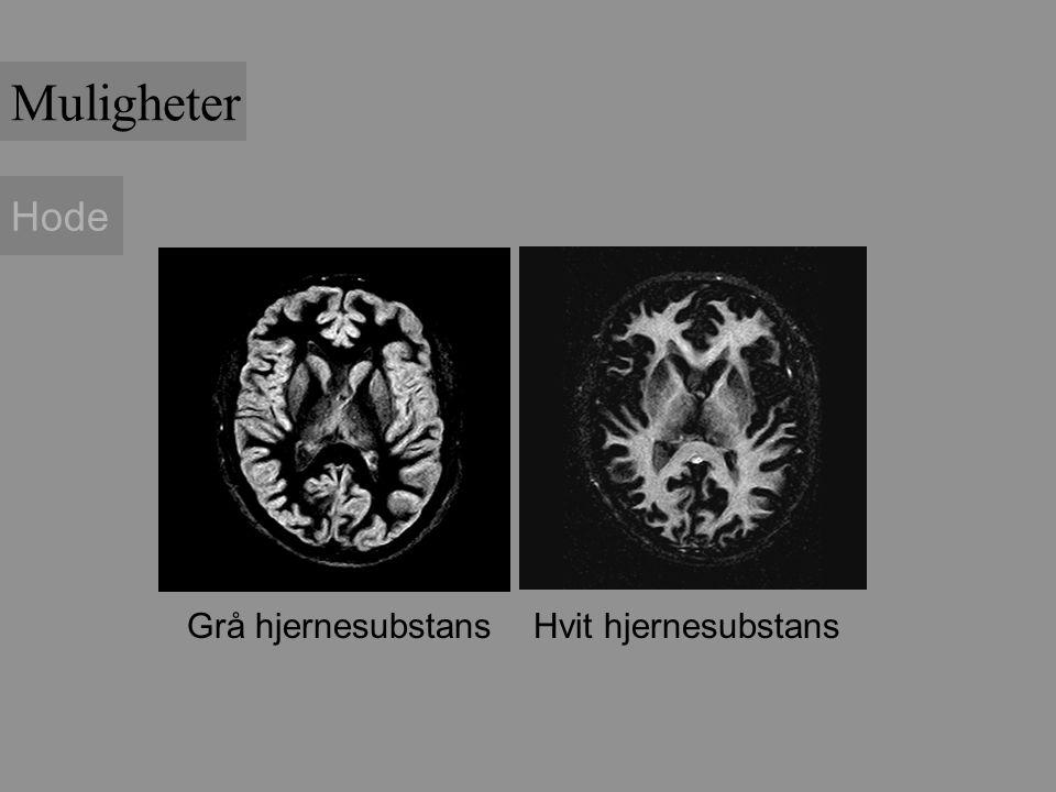 Hode Grå hjernesubstans Hvit hjernesubstans Muligheter