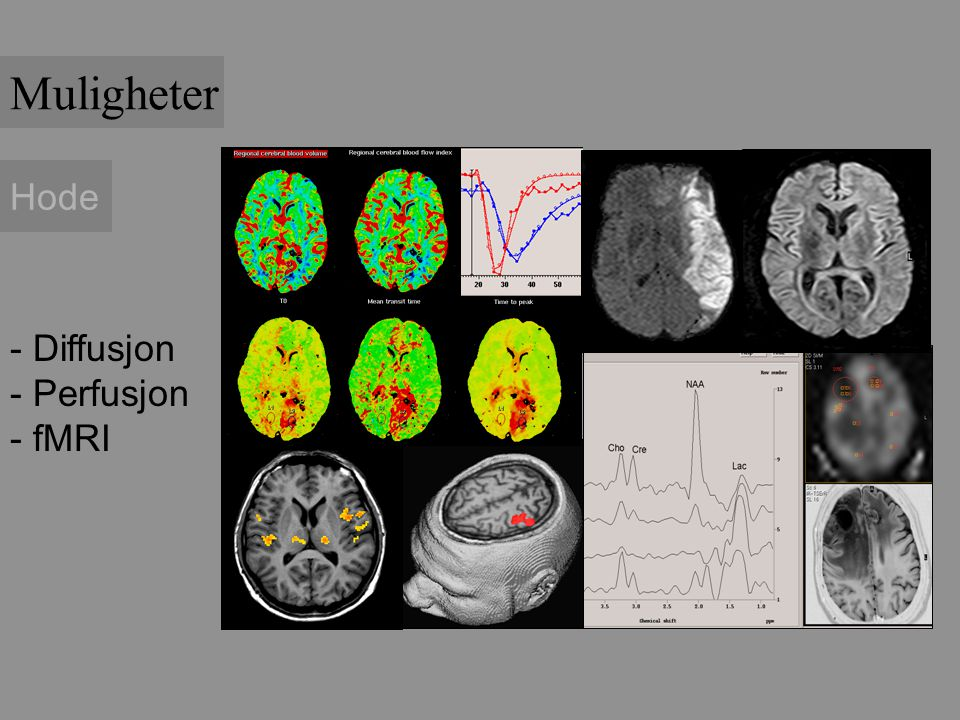 Hode - Diffusjon - Perfusjon - fMRI Muligheter