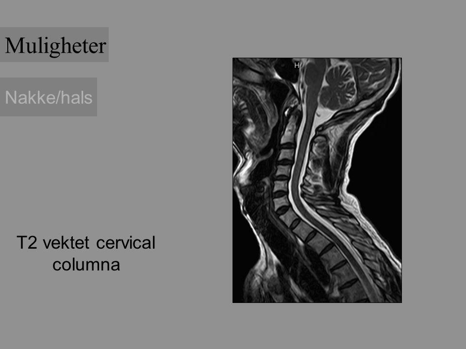 Nakke/hals T2 vektet cervical columna Muligheter