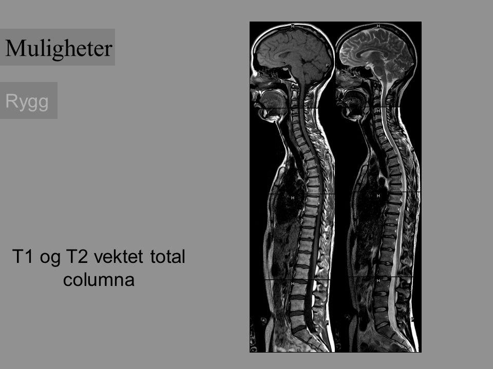 Rygg T1 og T2 vektet total columna Muligheter