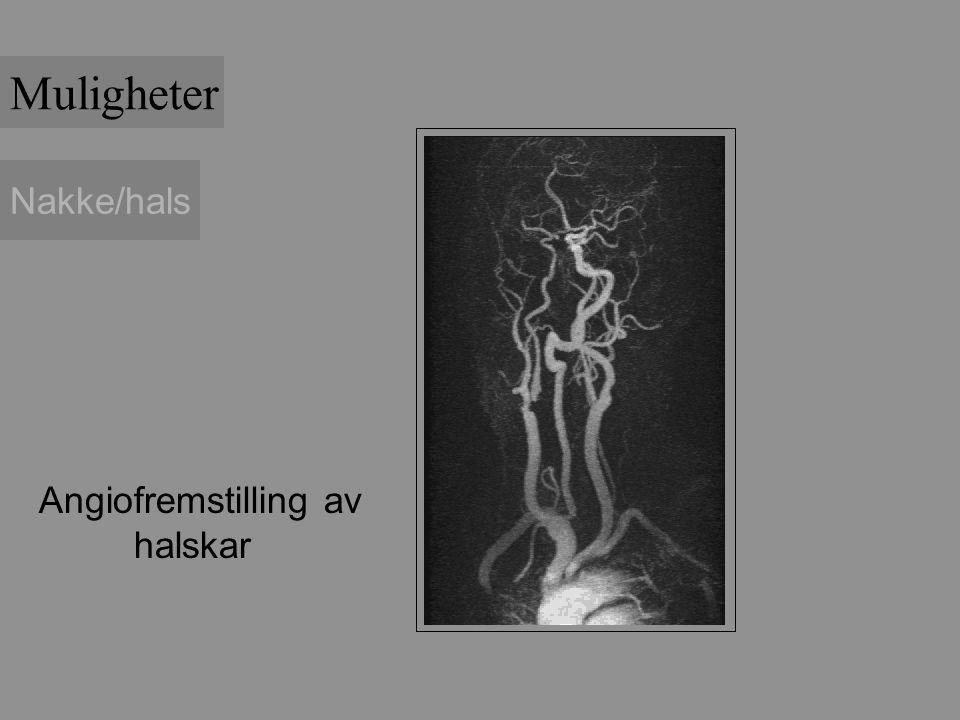 Nakke/hals Angiofremstilling av halskar Muligheter
