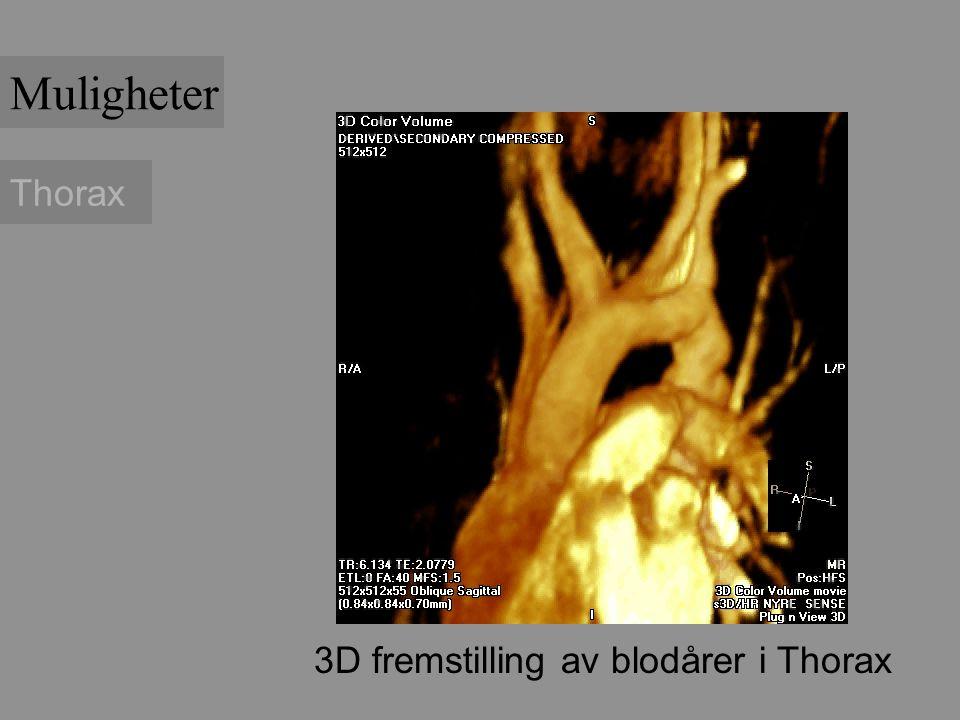 Thorax 3D fremstilling av blodårer i Thorax Muligheter