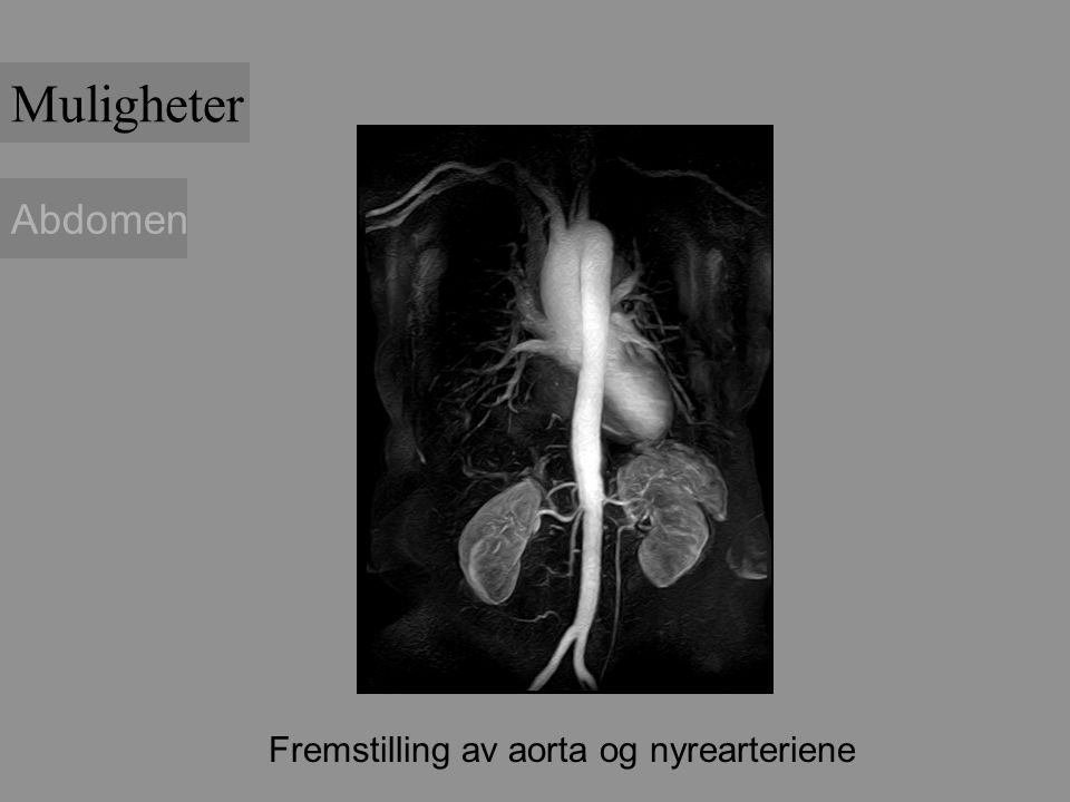 Abdomen Fremstilling av aorta og nyrearteriene Muligheter
