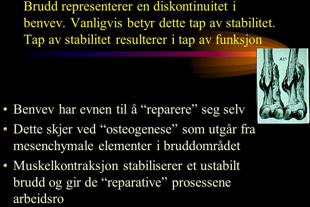 Indikasjoner til operativ bruddbehandling Relative PS DoB 16JA72 UHN 96676210 PS DoB 16JA72 UHN 96676210 Post redn.: post.#  Lt.hip 20AP96 12MA98 (+2Y1M)