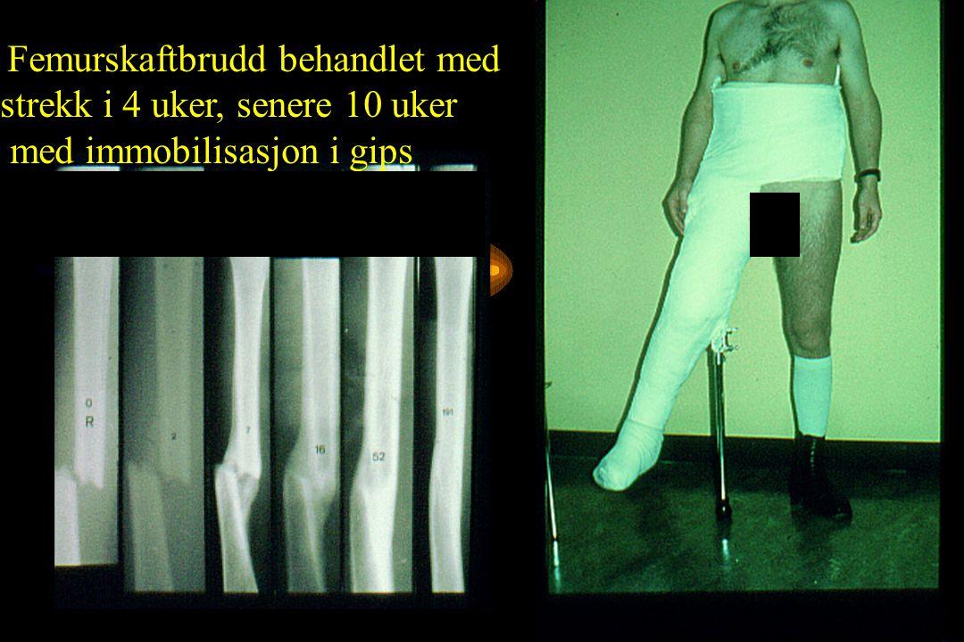 Anatomisk reposisjon Atraumatisk teknikk (biologisk osteosyntese) Stabil fiksasjon som tillater umiddelbar funksjonbell etterbehandling AO Gruppens prinsipp for operativ bruddbehandling 1958