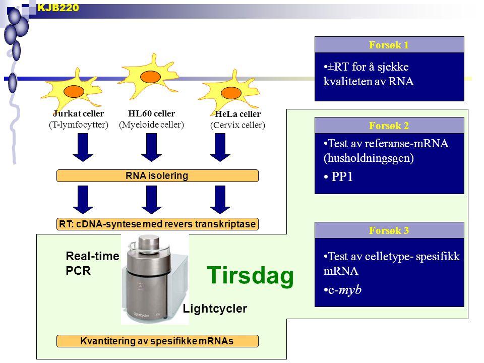 KJB220 Jurkat celler (T-lymfocytter) HL60 celler (Myeloide celler) HeLa celler (Cervix celler) RNA isolering RT: cDNA-syntese med revers transkriptase