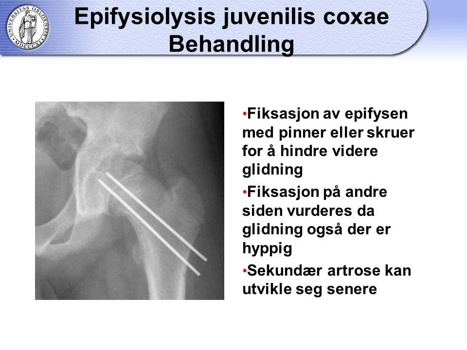 Epifysiolysis juvenilis coxae Behandling Fiksasjon av epifysen med pinner eller skruer for å hindre videre glidning Fiksasjon på andre siden vurderes da glidning også der er hyppig Sekundær artrose kan utvikle seg senere