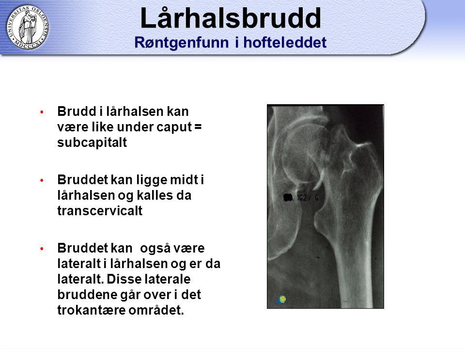 Brudd i lårhalsen kan være like under caput = subcapitalt Bruddet kan ligge midt i lårhalsen og kalles da transcervicalt Bruddet kan også være lateralt i lårhalsen og er da lateralt.