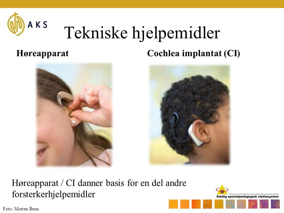 Tekniske hjelpemidler HøreapparatCochlea implantat (CI) Høreapparat / CI danner basis for en del andre forsterkerhjelpemidler Foto: Morten Brun