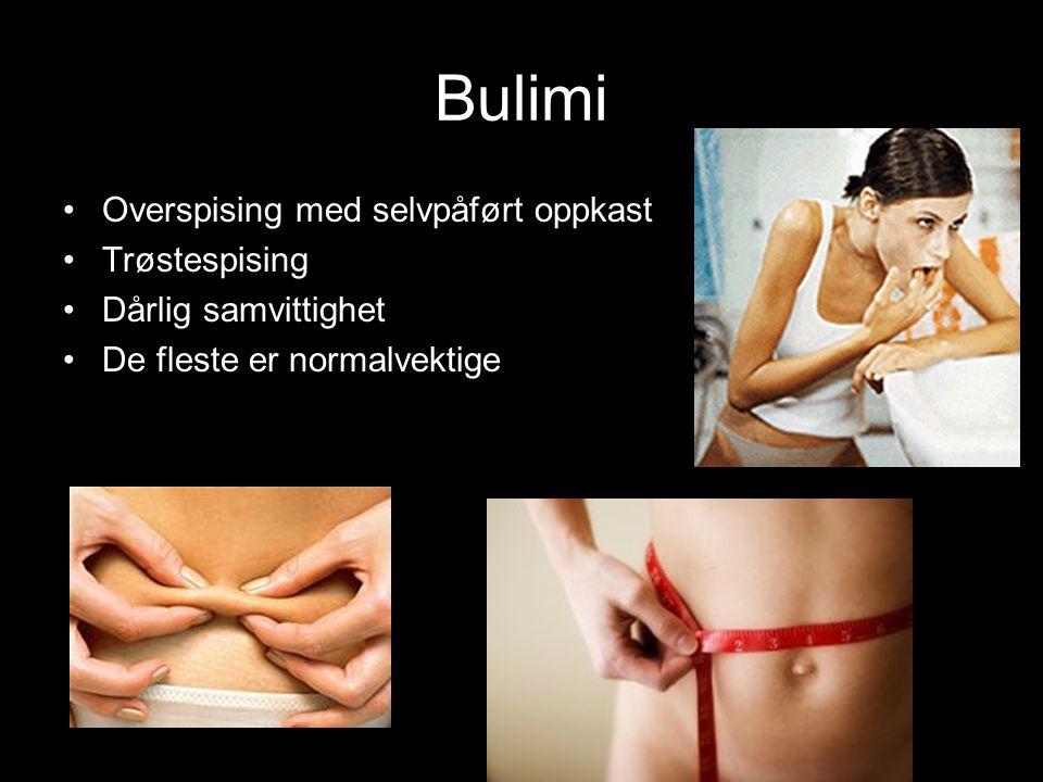 Bulimi Overspising med selvpåført oppkast Trøstespising Dårlig samvittighet De fleste er normalvektige