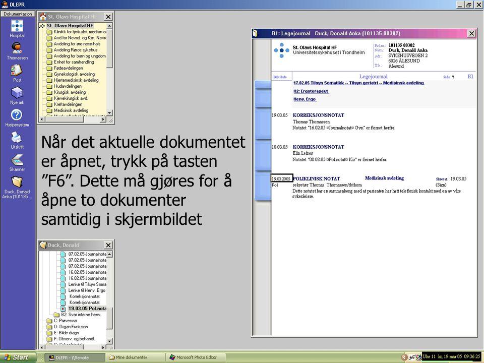 """Når det aktuelle dokumentet er åpnet, trykk på tasten """"F6"""". Dette må gjøres for å åpne to dokumenter samtidig i skjermbildet"""