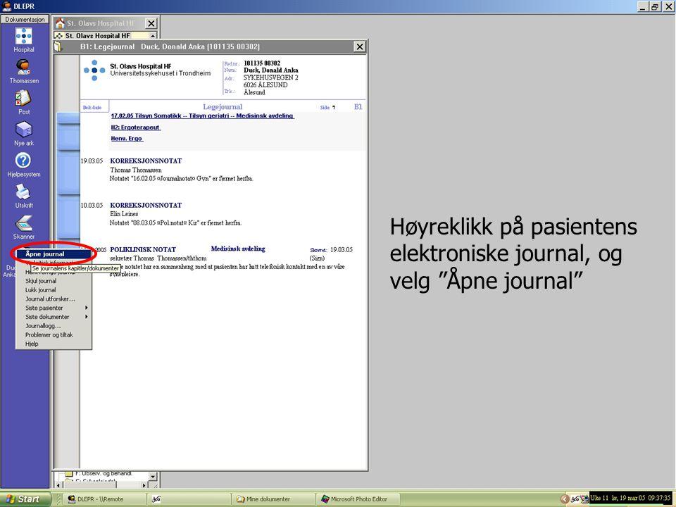"""Høyreklikk på pasientens elektroniske journal, og velg """"Åpne journal"""""""