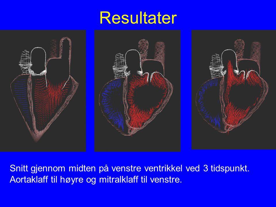 Resultater Snitt gjennom midten på venstre ventrikkel ved 3 tidspunkt. Aortaklaff til høyre og mitralklaff til venstre.