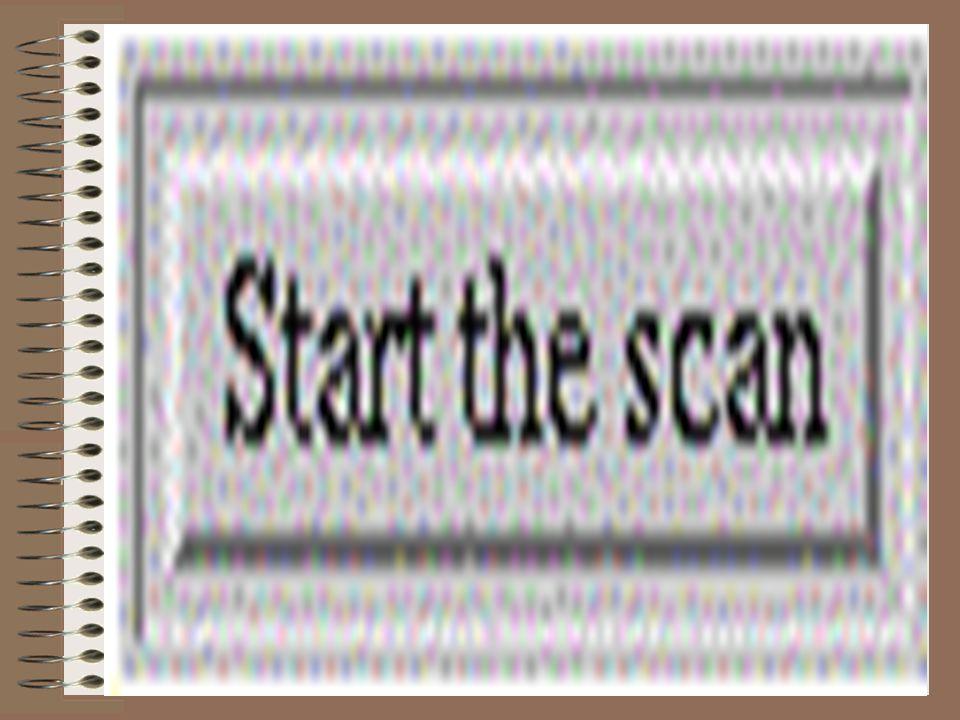 Scanne gjennom Brannmur: Viktig for SARA.