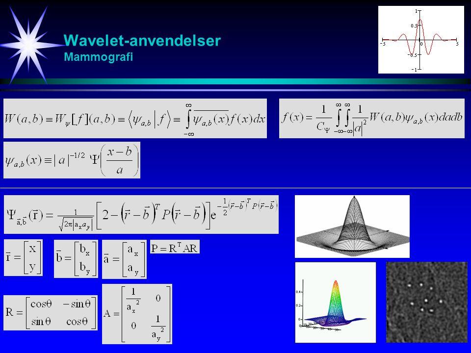 Wavelet-anvendelser Mammografi