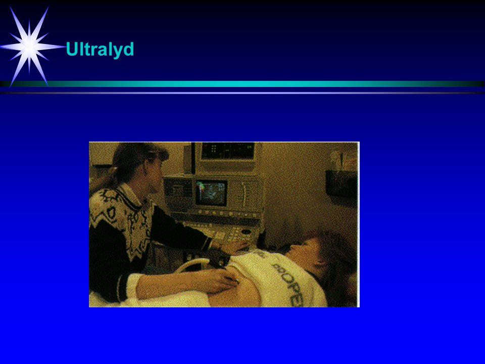 Ultralyd