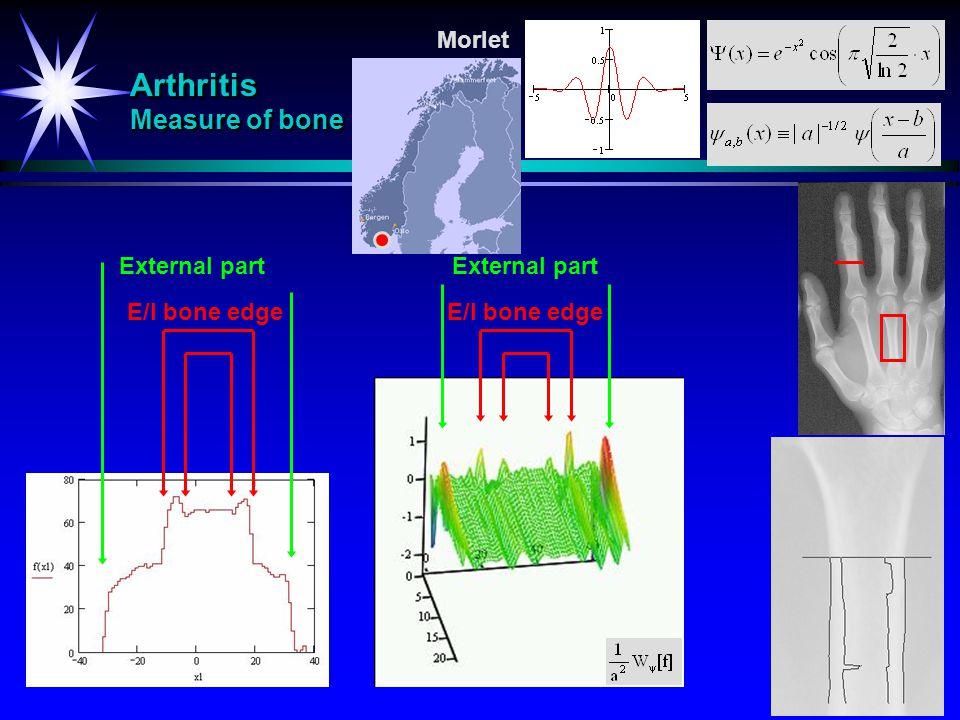 Arthritis Measure of bone Morlet External part E/I bone edge