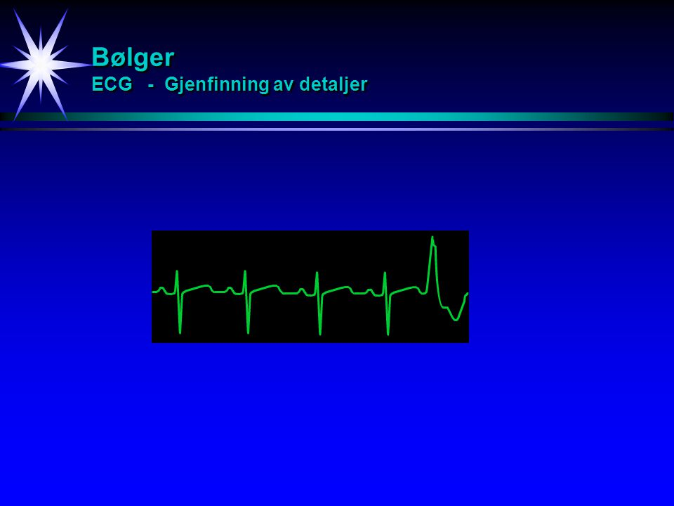 Bølger ECG - Gjenfinning av detaljer