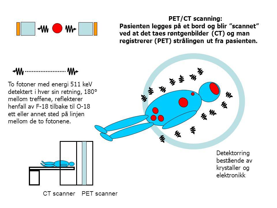 """Detektorring bestående av krystaller og elektronikk PET/CT scanning: Pasienten legges på et bord og blir """"scannet"""" ved at det taes røntgenbilder (CT)"""