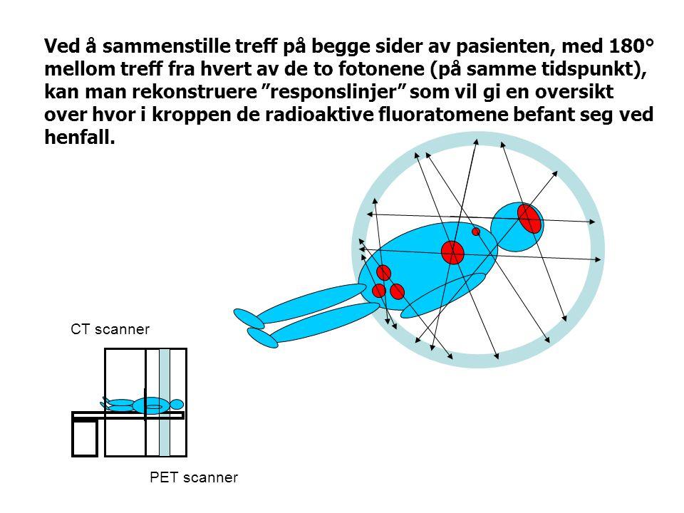 """Ved å sammenstille treff på begge sider av pasienten, med 180° mellom treff fra hvert av de to fotonene (på samme tidspunkt), kan man rekonstruere """"re"""