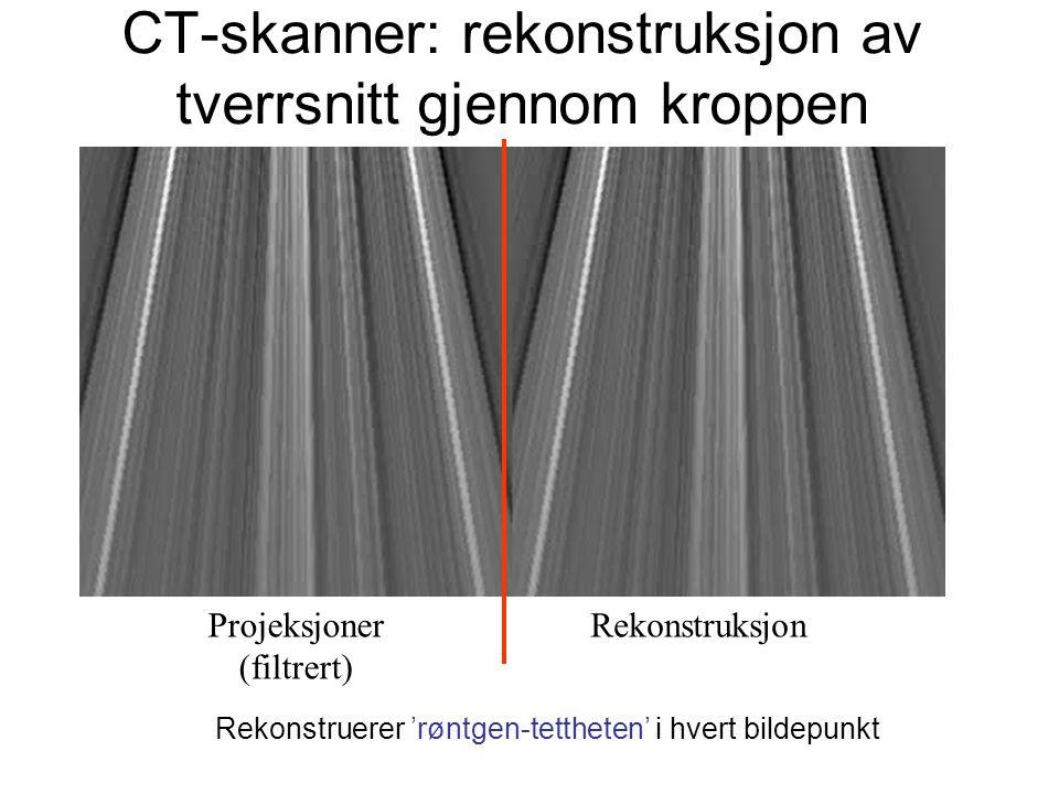 CT-skanner: rekonstruksjon av tverrsnitt gjennom kroppen Projeksjoner (filtrert) Rekonstruksjon Rekonstruerer 'røntgen-tettheten' i hvert bildepunkt