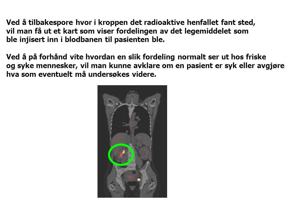 Ved å tilbakespore hvor i kroppen det radioaktive henfallet fant sted, vil man få ut et kart som viser fordelingen av det legemiddelet som ble injiser