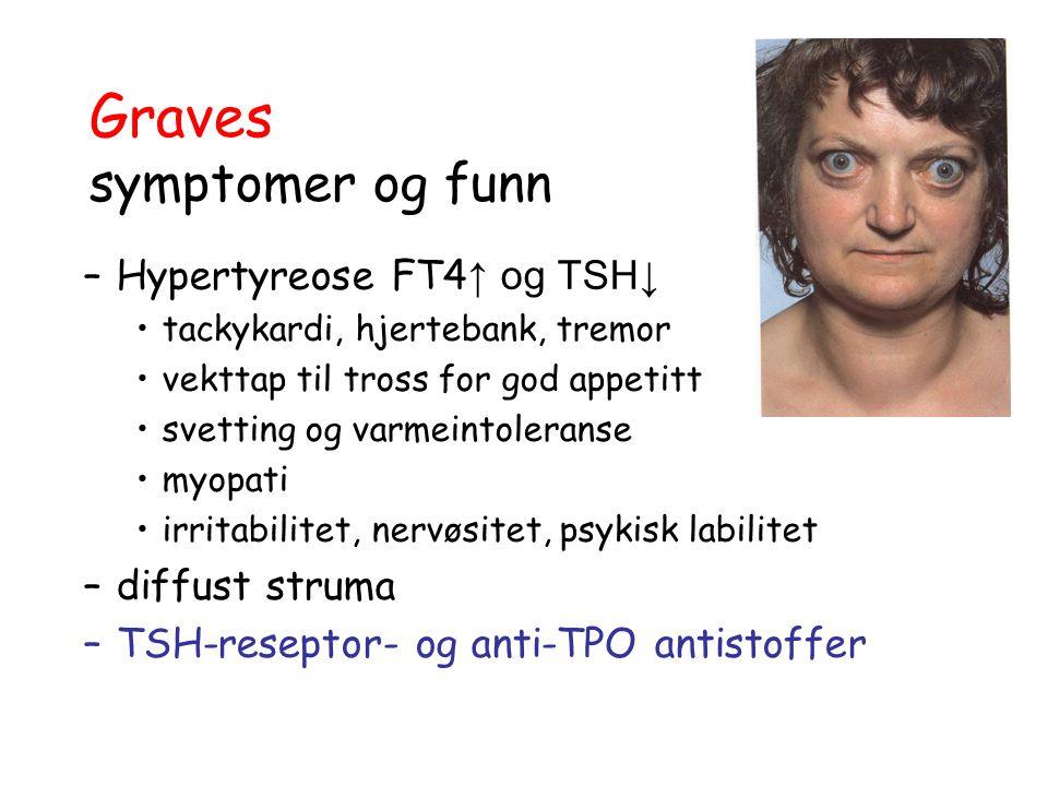 Graves symptomer og funn –Hypertyreose FT4 ↑ og TSH↓ tackykardi, hjertebank, tremor vekttap til tross for god appetitt svetting og varmeintoleranse my