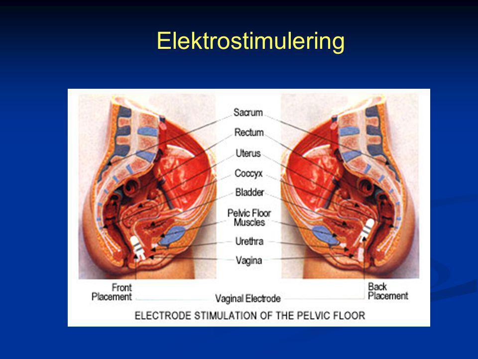 Elektrostimulering