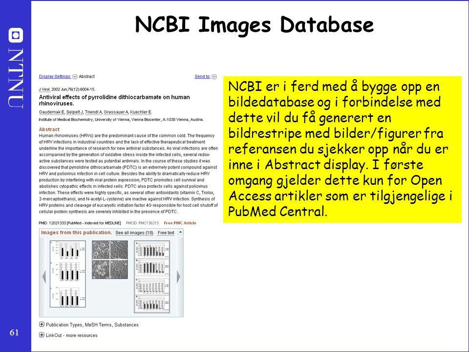 61 NCBI Images Database NCBI er i ferd med å bygge opp en bildedatabase og i forbindelse med dette vil du få generert en bildrestripe med bilder/figur