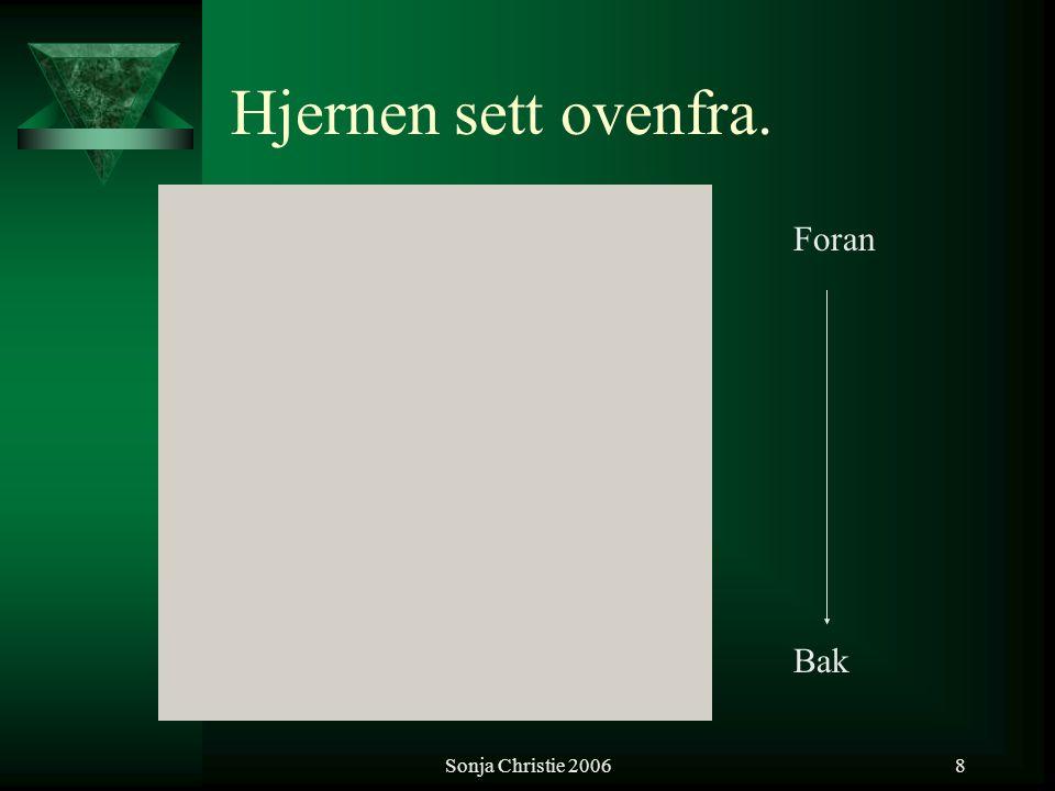 Sonja Christie 20069 Venstresidige / Høyresidige hjernefunksjoner:  Språklige/verbale funksjoner.