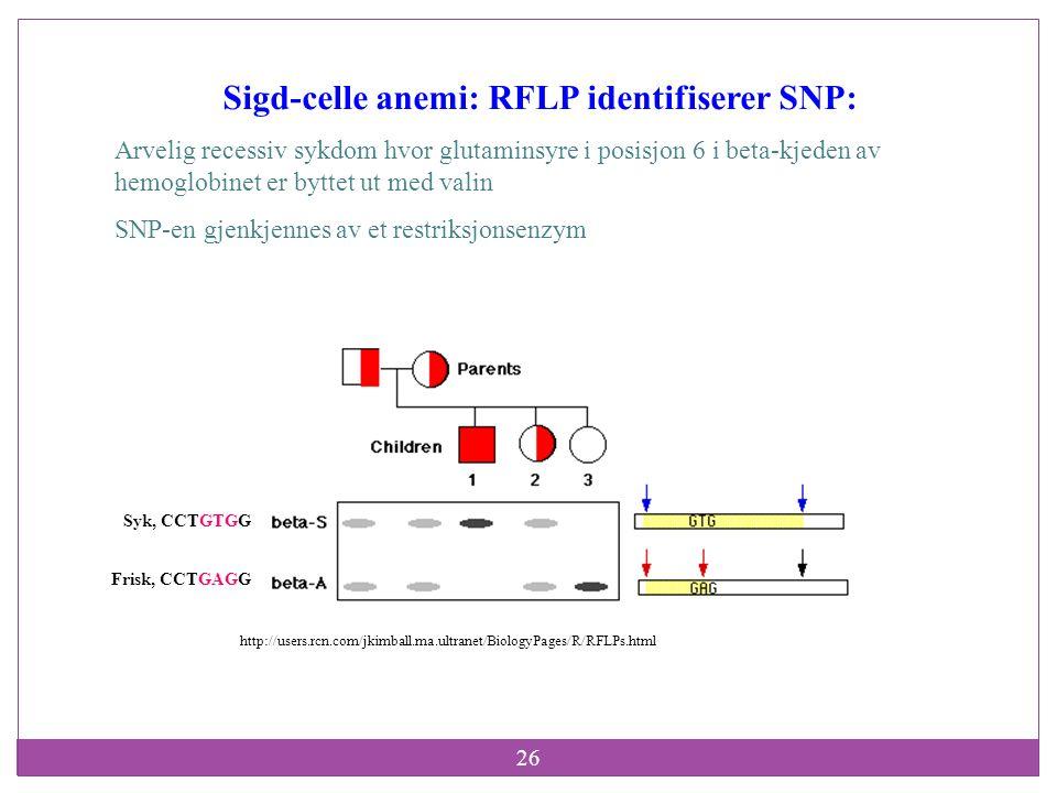 26 Sigd-celle anemi: RFLP identifiserer SNP: Arvelig recessiv sykdom hvor glutaminsyre i posisjon 6 i beta-kjeden av hemoglobinet er byttet ut med val