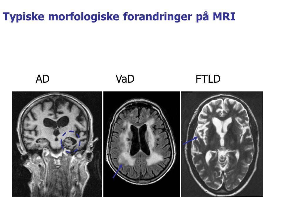 ADVaDFTLD Typiske morfologiske forandringer på MRI
