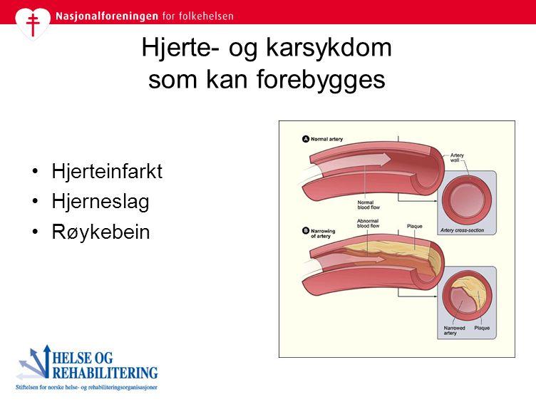 Hjerteinfarkt Hjerneslag Røykebein Hjerte- og karsykdom som kan forebygges