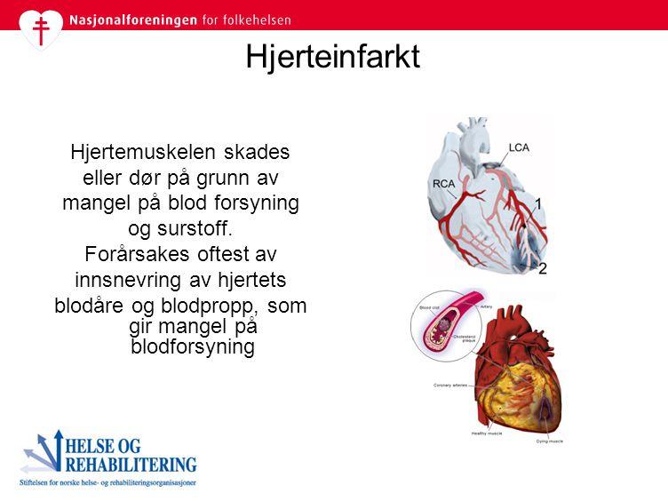 Hjerteinfarkt Hjertemuskelen skades eller dør på grunn av mangel på blod forsyning og surstoff. Forårsakes oftest av innsnevring av hjertets blodåre o