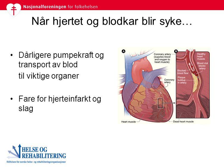 Når hjertet og blodkar blir syke… Dårligere pumpekraft og transport av blod til viktige organer Fare for hjerteinfarkt og slag