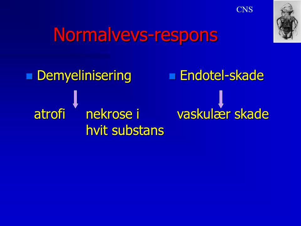 Normalvevs-responsNormalvevs-respons n Demyelinisering atrofinekrose i hvit substans atrofinekrose i hvit substans CNS n Endotel-skade vaskulær skade