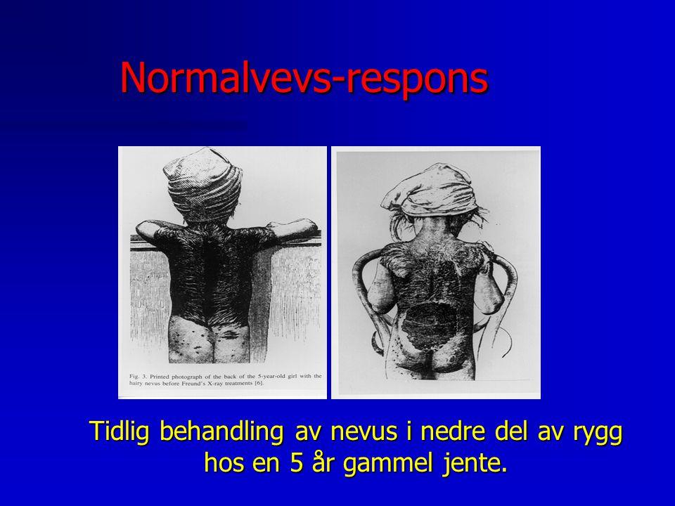Normalvevs-responsNormalvevs-respons Hud n Erytem Tørr/våt dermatitt (skade i basalcelle- laget) Ulserasjon n Atrofi/ strålefibrose n Vaskulær skade (telangiektasi)